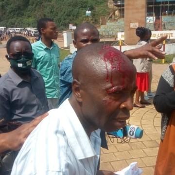 Covid-19 : journalistes agressés pendant une manifestation estudiantine